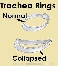 Collapsing Trachea