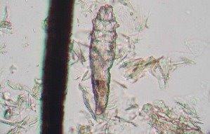Demodex canis mite