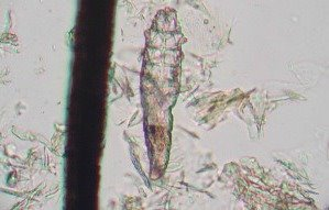 Demodex canis mite